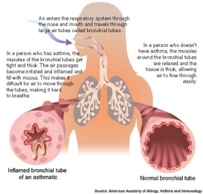 inhalers for asthma without steroids